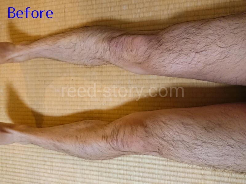 スネ毛を処理する前(Before)